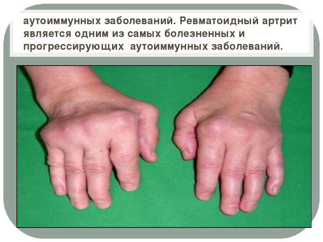 аутоиммунных заболеваний. Ревматоидный артрит является одним из самых болезн...