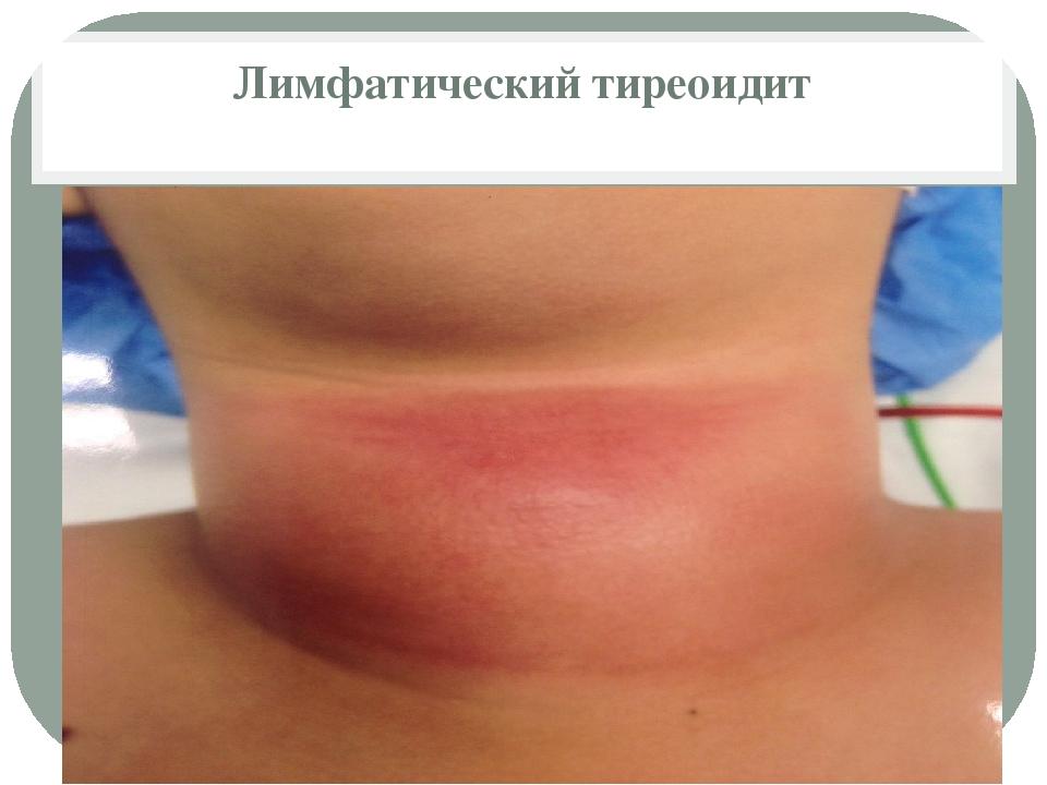 Лимфатический тиреоидит