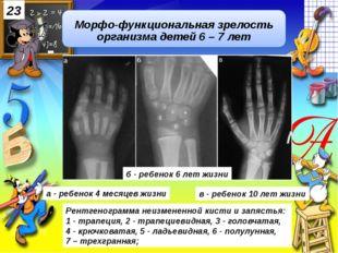 Рентгенограмма неизмененной кисти и запястья: 1 - трапеция, 2 - трапециевидн