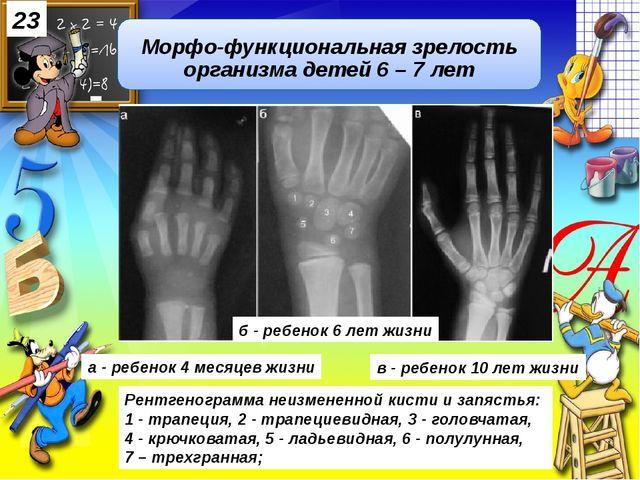 Рентгенограмма неизмененной кисти и запястья: 1 - трапеция, 2 - трапециевидн...