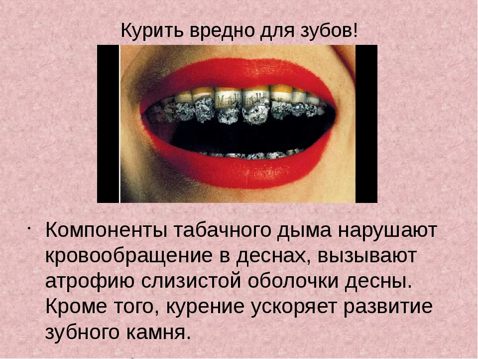 Курить вредно для зубов! Компоненты табачного дыма нарушают кровообращение в...