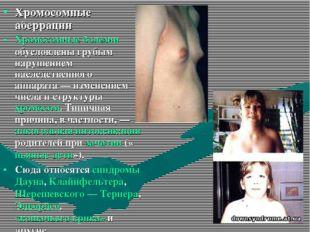 Хромосомные аберрации Хромосомные болезни обусловлены грубым нарушением насле