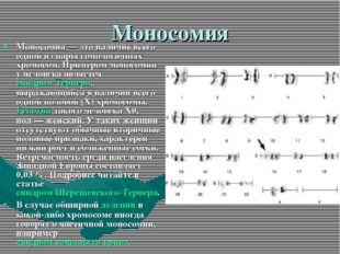 Моносомия Моносомия— это наличие всего одной из пары гомологичных хромосом.