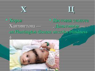 Х Ц Хорея Хантингтона — en:Huntington disease4 Цветовая слепота, Дальтонизм —