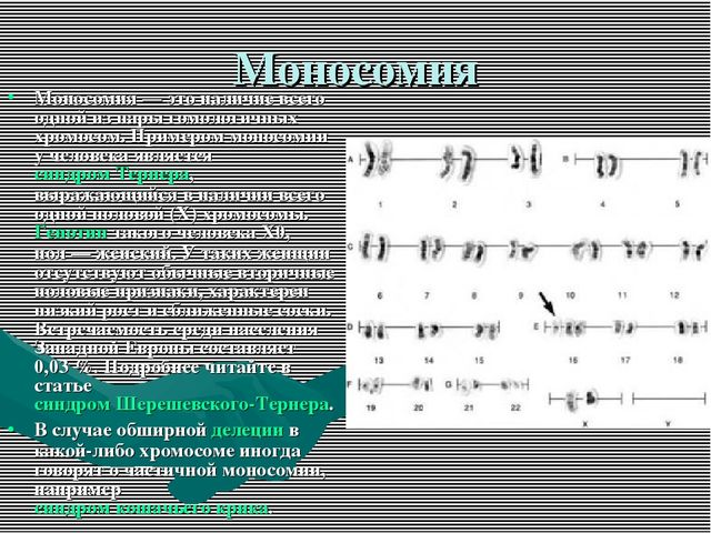 Моносомия Моносомия— это наличие всего одной из пары гомологичных хромосом....