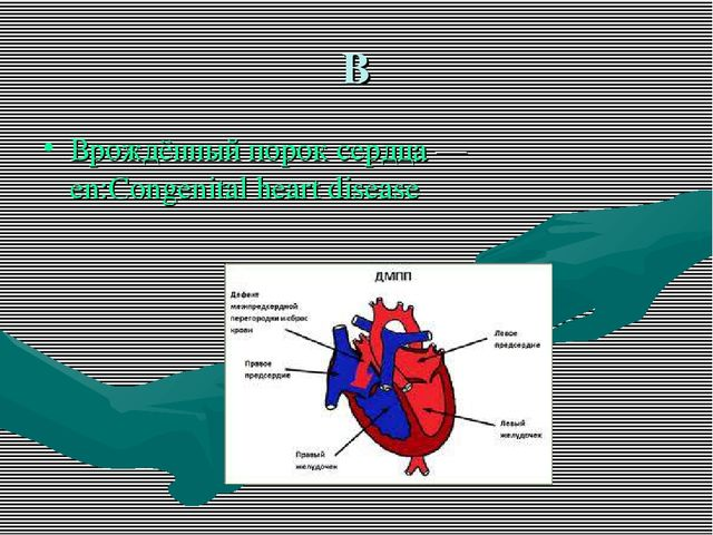 В Врождённый порок сердца — en:Congenital heart disease
