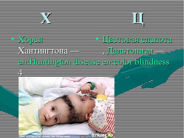Х Ц Хорея Хантингтона — en:Huntington disease4 Цветовая слепота, Дальтонизм —...