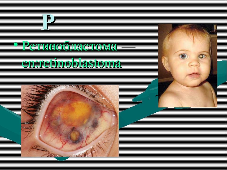 Р Ретинобластома — en:retinoblastoma