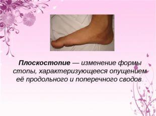 Плоскостопие— изменение формы стопы, характеризующееся опущением её продоль