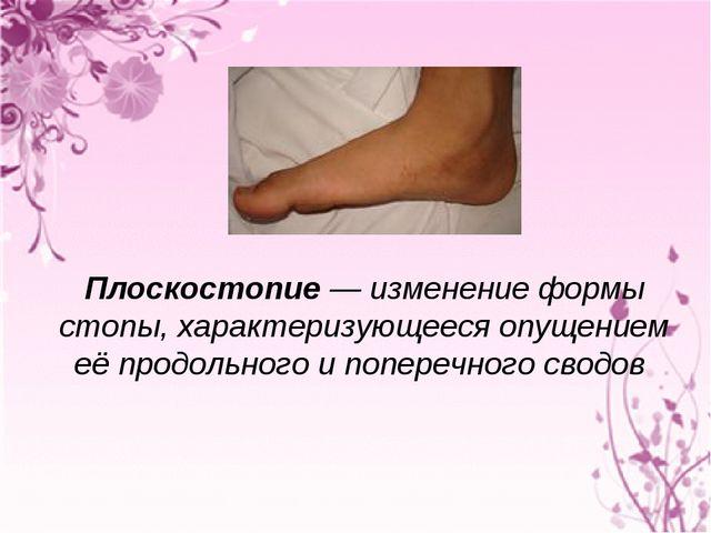 Плоскостопие— изменение формы стопы, характеризующееся опущением её продоль...