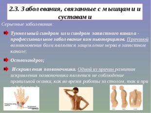 2.3. Заболевания, связанные с мышцами и суставами Серьезные заболевания: Тунн