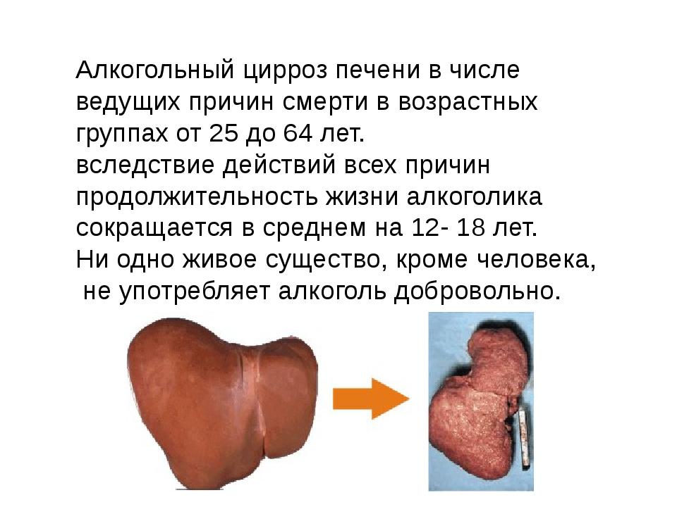 Алкогольный цирроз печени в числе ведущих причин смерти в возрастных группах...