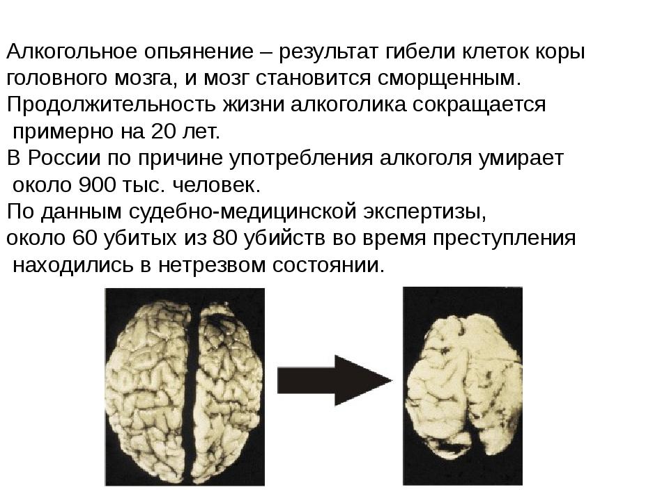 Алкогольное опьянение – результат гибели клеток коры головного мозга, и мозг...