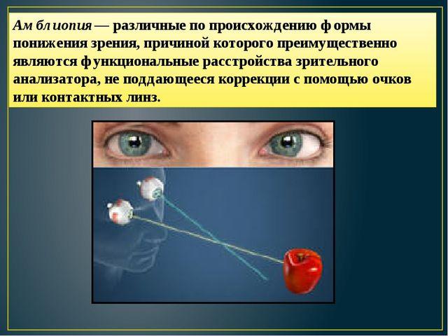 Амблиопия— различные по происхождению формы понижения зрения, причиной которо...