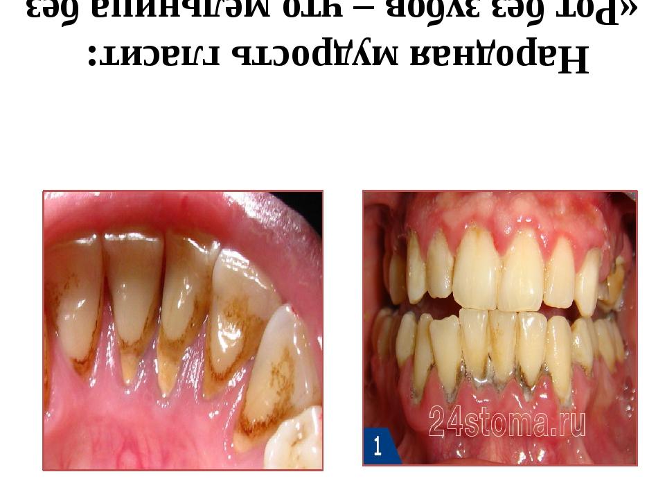 Народная мудрость гласит: «Рот без зубов – что мельница без жерновов»