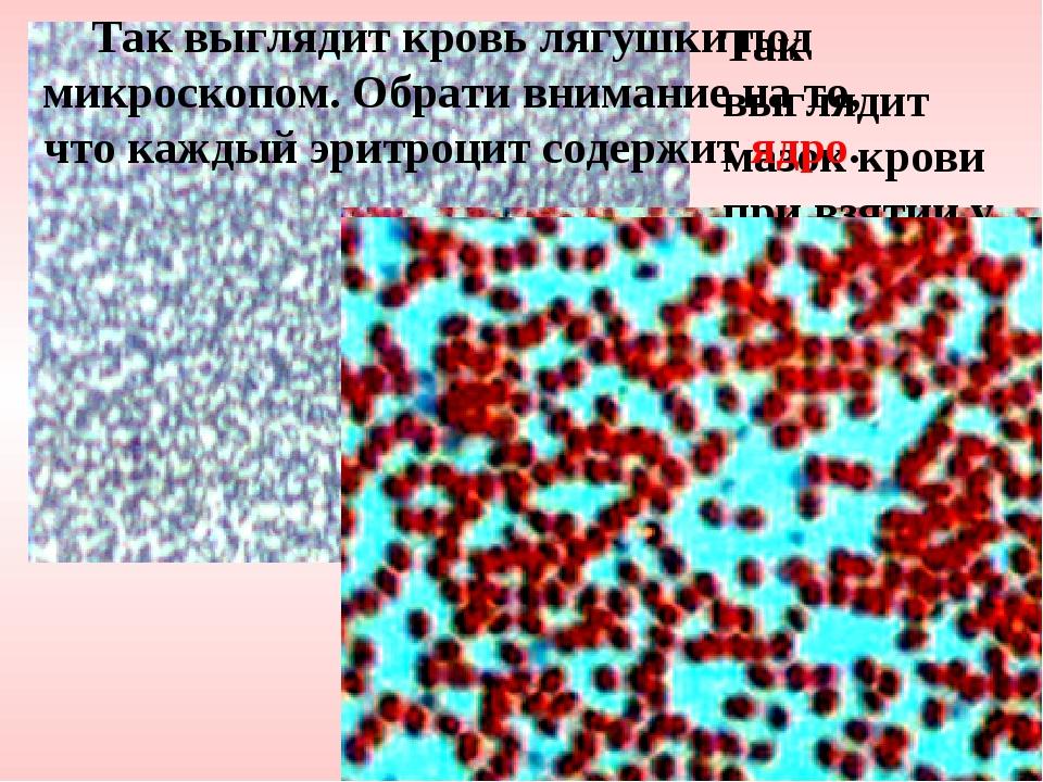 Так выглядит мазок крови при взятии у тебя анализа. Так выглядит кровь лягушк...