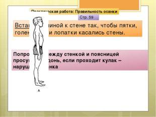 Лордоз Кифоз Кифоз Плоская спина сглаженностью всех физиоло гических изгибов