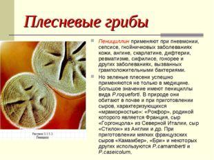 Плесневые грибы Пенициллин применяют при пневмонии, сепсисе, гнойничковых заб