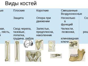Виды костей Трубчатые Плоские Короткие Смешанные Воздухоносные Рычаги Защита