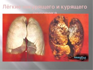 Лёгкие некурящего и курящего человека