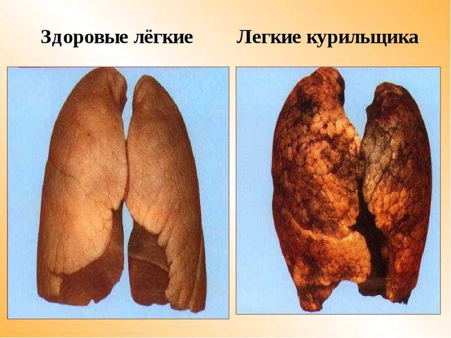 Здоровые лёгкие Легкие курильщика