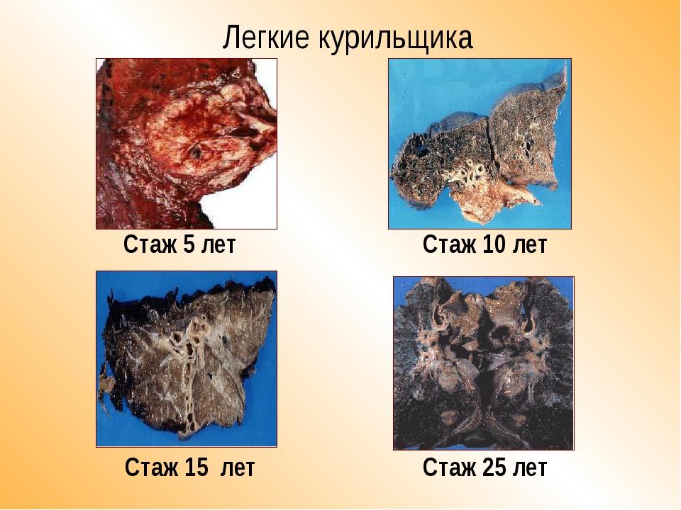 Легкие курильщика Стаж 25 лет Стаж 10 лет Стаж 5 лет Стаж 15 лет