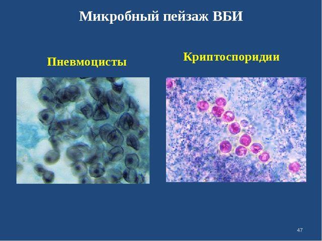 Микробный пейзаж ВБИ Пневмоцисты Криптоспоридии *