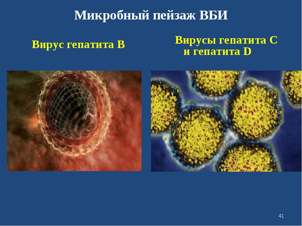 Микробный пейзаж ВБИ Вирус гепатита В Вирусы гепатита С и гепатита D *