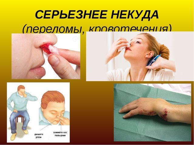 СЕРЬЕЗНЕЕ НЕКУДА (переломы, кровотечения)