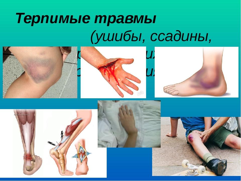 Терпимые травмы (ушибы, ссадины, порезы, вывихи и растяжения)