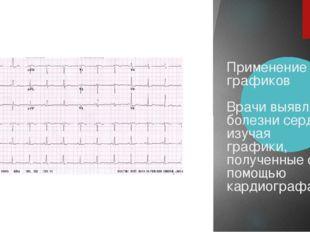 Применение графиков Врачи выявляют болезни сердца, изучая графики, полученны