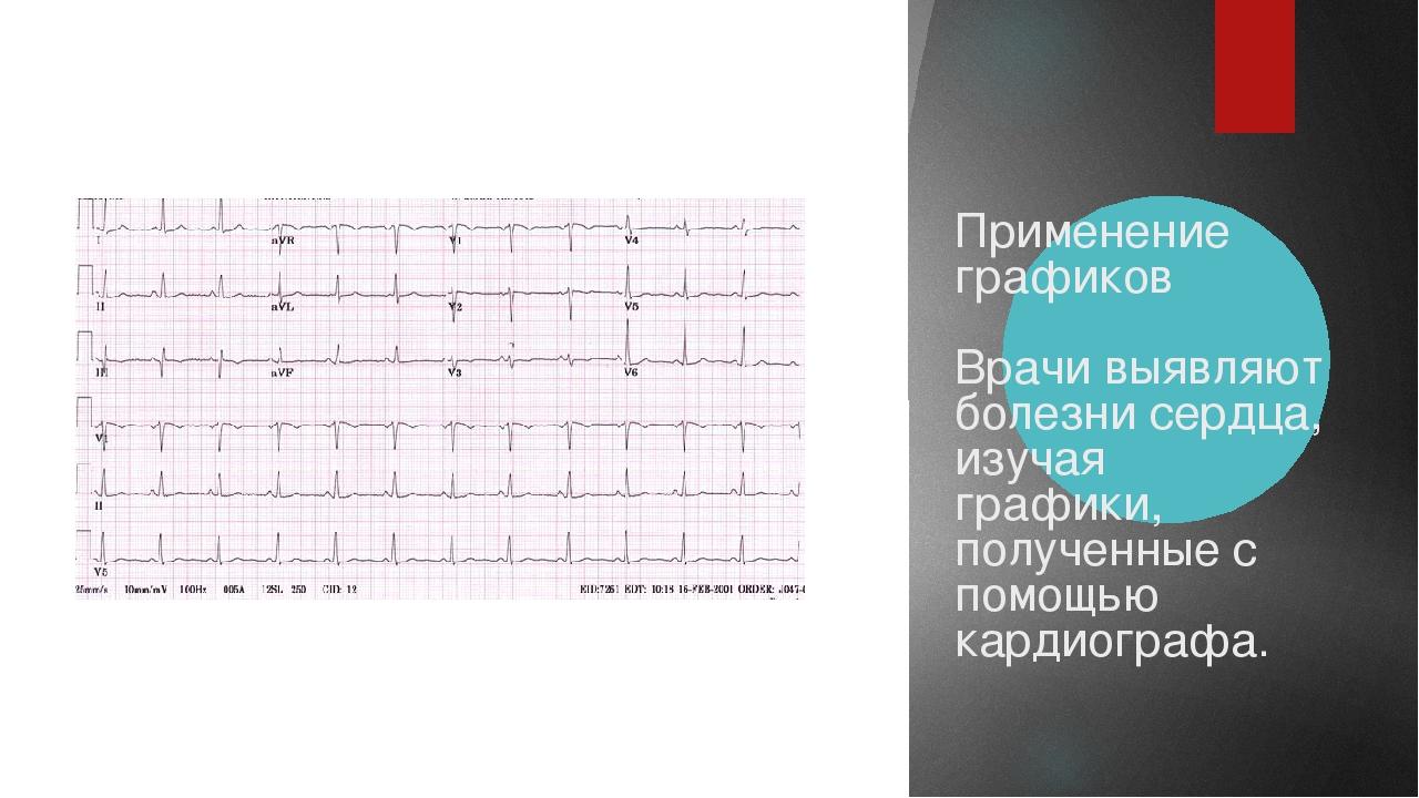Применение графиков Врачи выявляют болезни сердца, изучая графики, полученны...