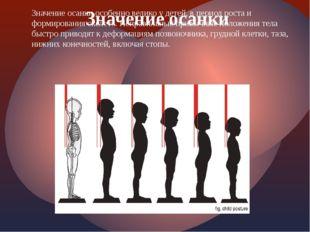 Значение осанки особенно велико у детей, в период роста и формирования скелет