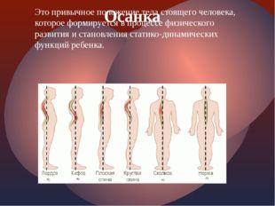 Это привычное положение тела стоящего человека, которое формируется в процесс