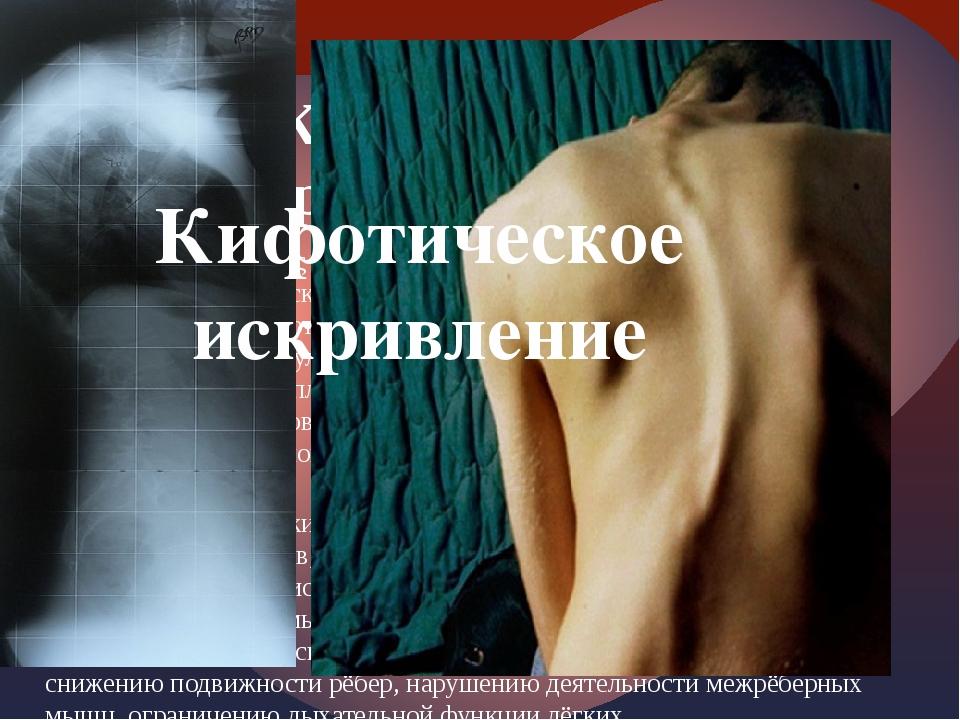 Кифоз (др.-греч. κύφος согнутый, горбатый) заболевание, которое представляет...