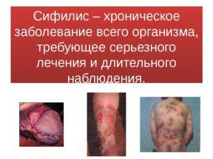 Сифилис – хроническое заболевание всего организма, требующее серьезного лечен