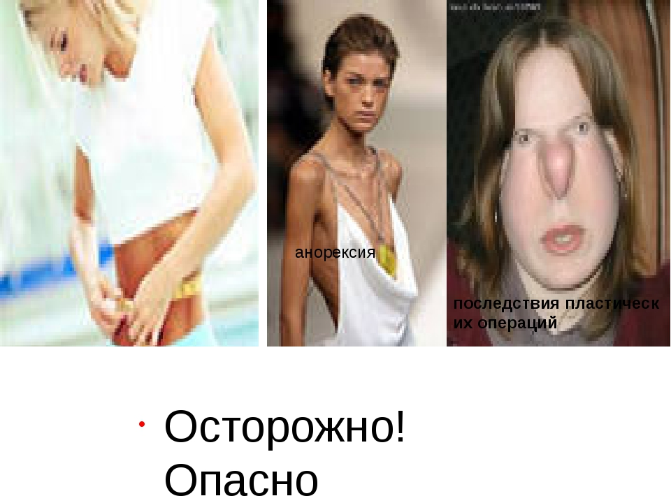 Осторожно! Опасно анорексия последствияпластических операций