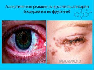 Аллергическая реакция на краситель ализарин (содержится во фрутелле)