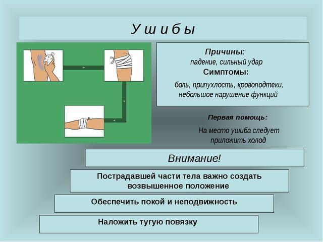 У ш и б ы Внимание! падение, сильный удар Причины: Симптомы: Первая помощь: б...