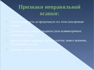 Признаки неправильной осанки: Голова выдвинута за продольную ось тела (опущен
