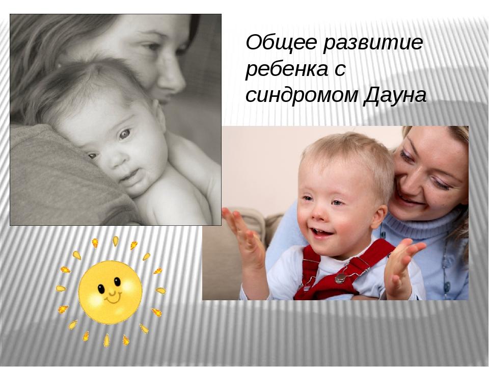 Общее развитие ребенка с синдромом Дауна