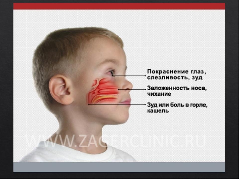 аллергопробы для детей 2 лет (