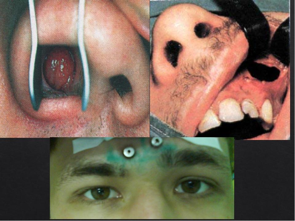 Заболевание носа с картинками
