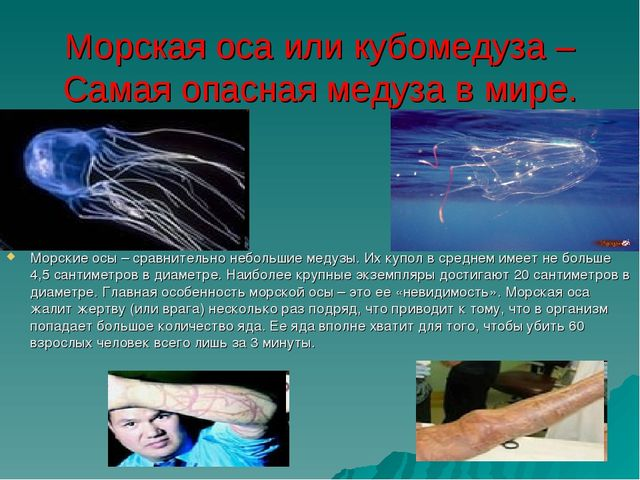 Морская оса или кубомедуза – Самая опасная медуза в мире. Морские осы – сравн...