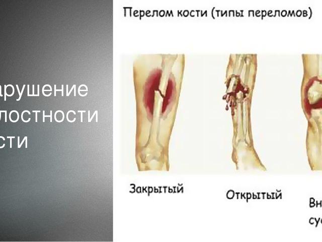 Нарушение целостности кости