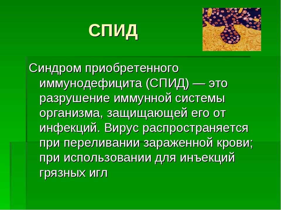 СПИД Синдром приобретенного иммунодефицита (СПИД) — это разрушение иммунной...
