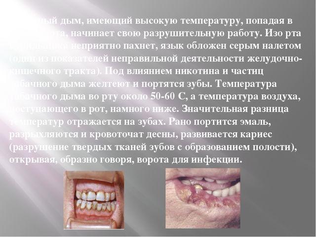 Табачный дым, имеющий высокую температуру, попадая в полость рта, начинает св...