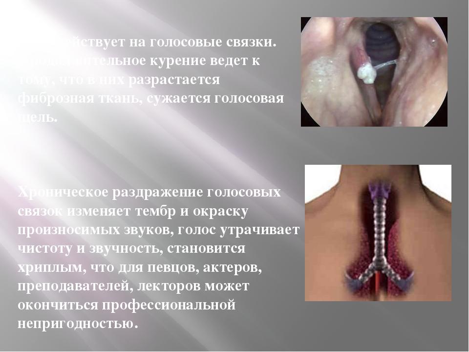 Дым действует на голосовые связки. Продолжительное курение ведет к тому, что...