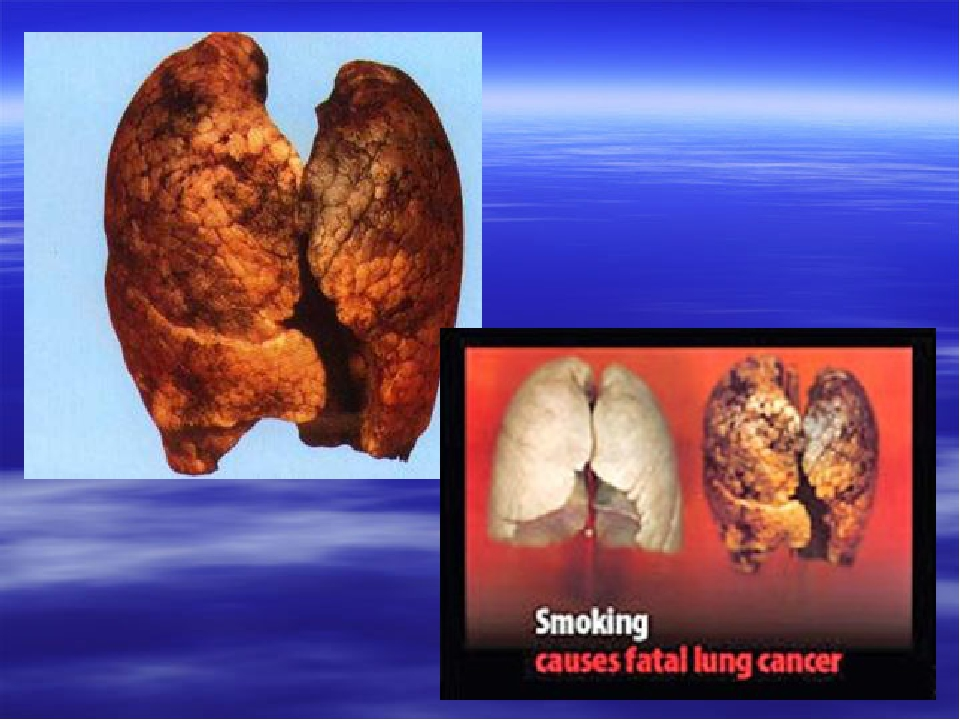smoking causes lung cancer essay Essay on smoking and lung cancer smoking has become a common habit for many people all over the world it has become an addiction to some even if measures by the government to make cigarettes more expensive have already been implemented.