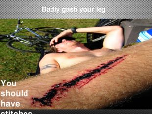 Badly gash your leg You should have stitches